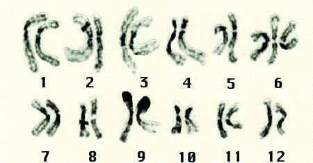 (a) Trisomics of chromosome No. 6. Characteristics